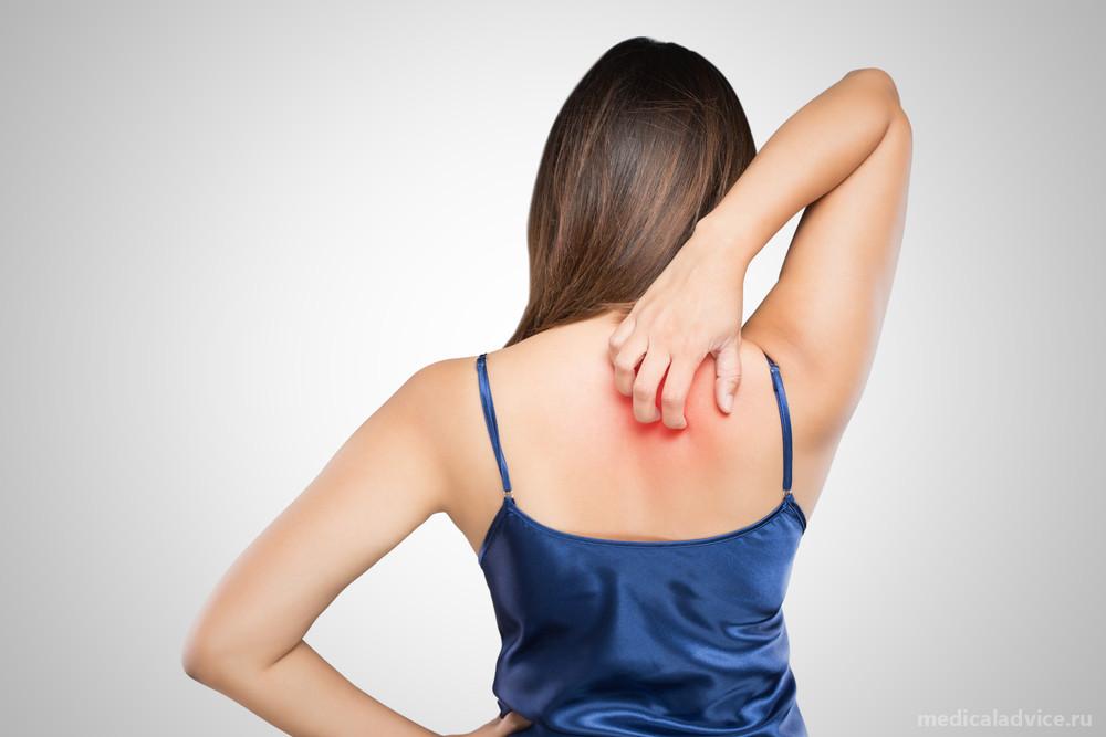 Cтригущий лишай: симптомы, диагностика, лечение